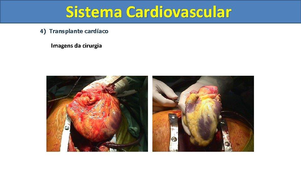 Sistema Cardiovascular Circulatório 4) Transplante cardíaco Imagens da cirurgia