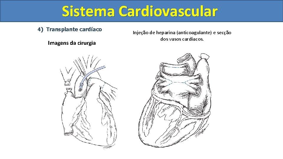 Sistema Cardiovascular Circulatório 4) Transplante cardíaco Imagens da cirurgia Injeção de heparina (anticoagulante) e