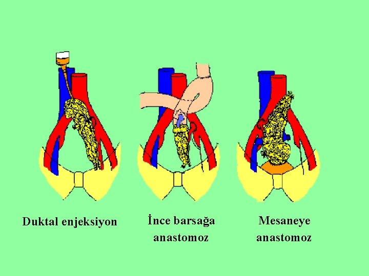Duktal enjeksiyon İnce barsağa anastomoz Mesaneye anastomoz