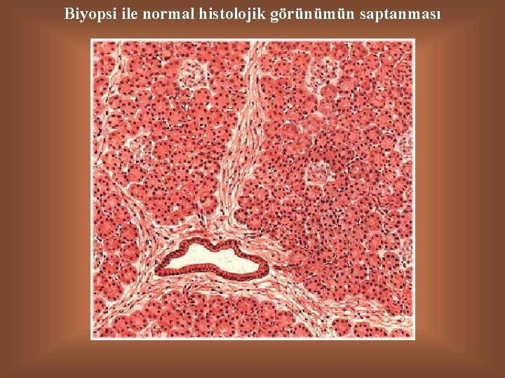 Biyopsi ile normal histolojik görünümün saptanması