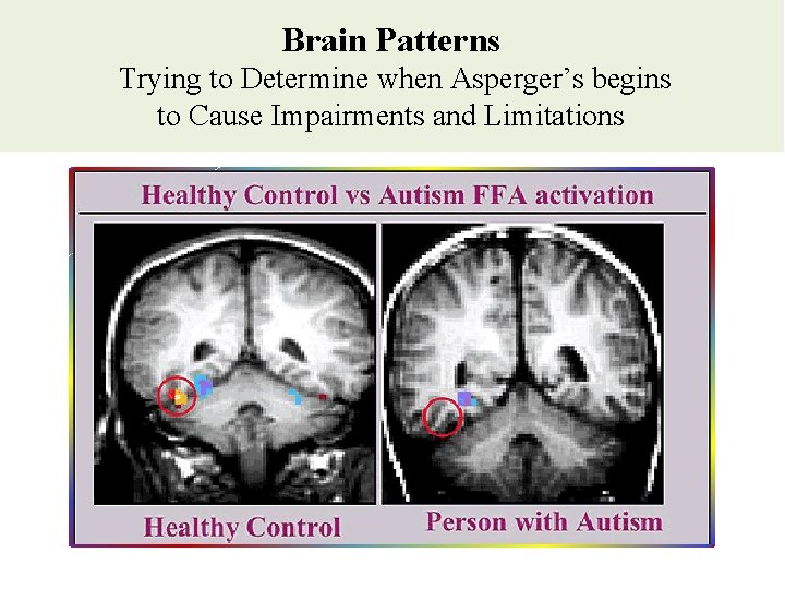 Brain Patterns Trying to Determine when Asperger's begins to Cause Impairments and Limitations