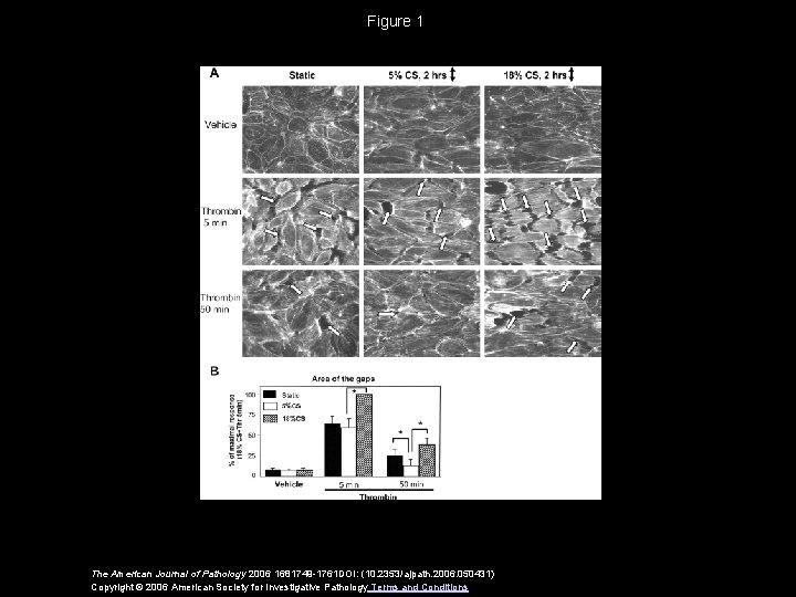 Figure 1 The American Journal of Pathology 2006 1681749 -1761 DOI: (10. 2353/ajpath. 2006.