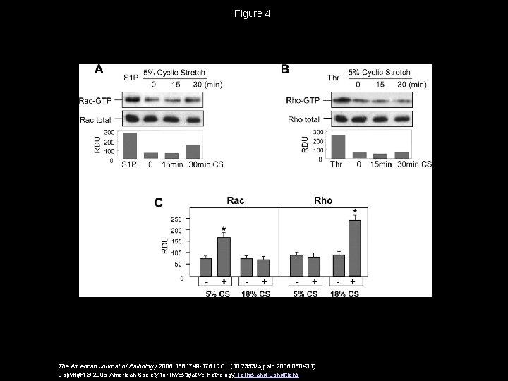 Figure 4 The American Journal of Pathology 2006 1681749 -1761 DOI: (10. 2353/ajpath. 2006.