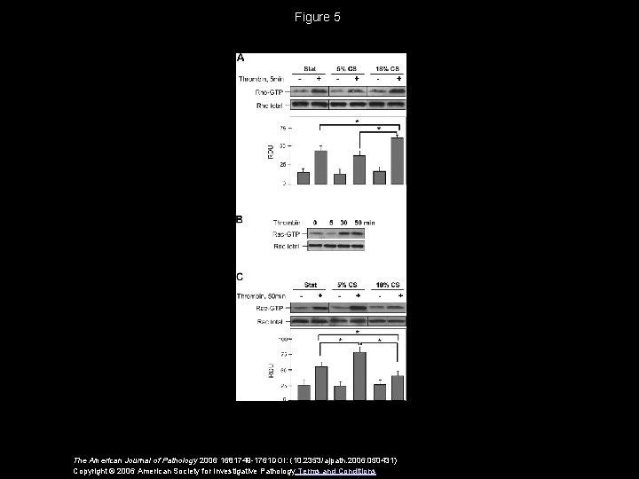 Figure 5 The American Journal of Pathology 2006 1681749 -1761 DOI: (10. 2353/ajpath. 2006.