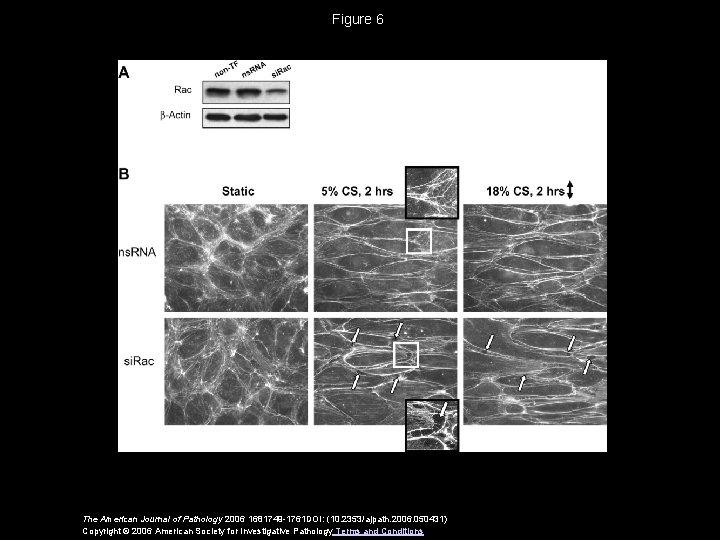 Figure 6 The American Journal of Pathology 2006 1681749 -1761 DOI: (10. 2353/ajpath. 2006.