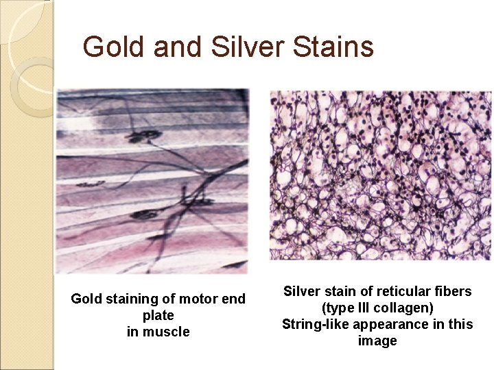Gold and Silver Stains Gold staining of motor end plate in muscle Silver stain