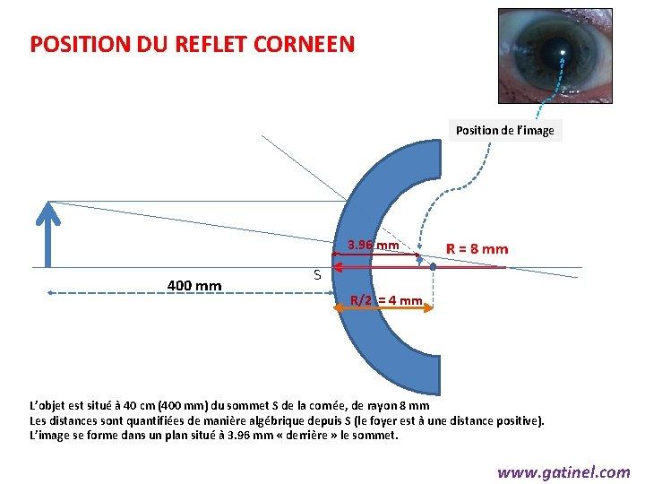 POSITION DU REFLET CORNEEN Position de l'image 3. 96 mm 400 mm R =