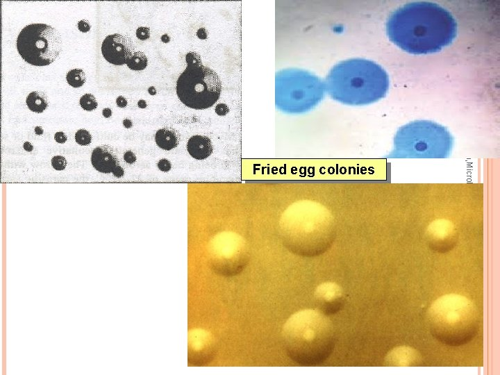 Dr Ekta, Microbiology, GMCA Fried egg colonies