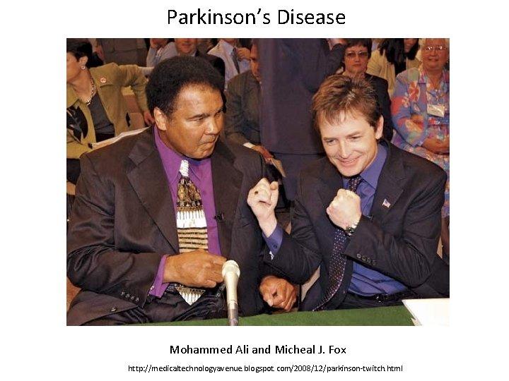 Parkinson's Disease Mohammed Ali and Micheal J. Fox http: //medicaltechnologyavenue. blogspot. com/2008/12/parkinson-twitch. html