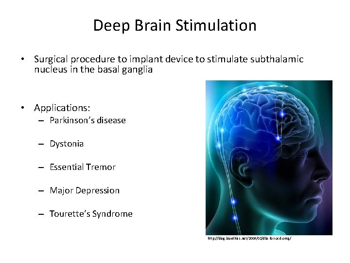 Deep Brain Stimulation • Surgical procedure to implant device to stimulate subthalamic nucleus in