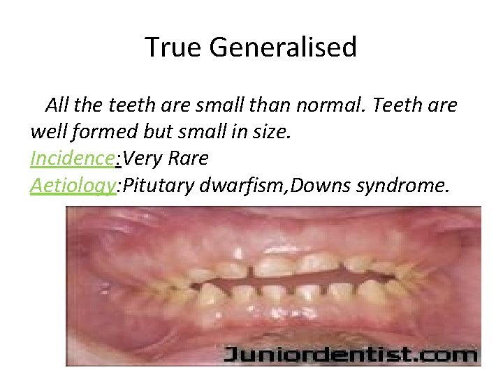 True Generalised All the teeth are small than normal. Teeth are well formed but