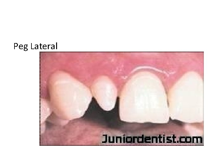 Peg Lateral