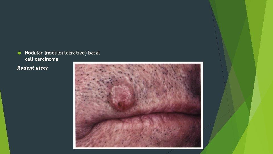 Nodular (noduloulcerative) basal cell carcinoma Rodent ulcer