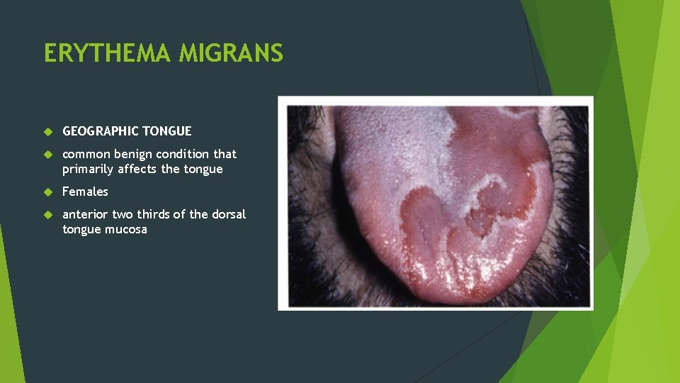 ERYTHEMA MIGRANS GEOGRAPHIC TONGUE common benign condition that primarily affects the tongue Females anterior