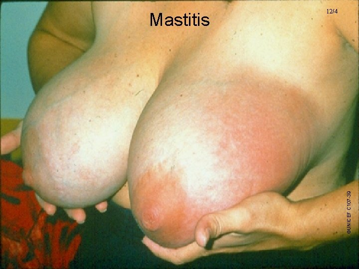 ©UNICEF C 107 -39 Mastitis 12/4 UNICEF/WHO Breastfeeding Promotion and Support in a Baby-Friendly