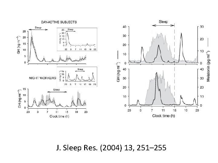 J. Sleep Res. (2004) 13, 251– 255