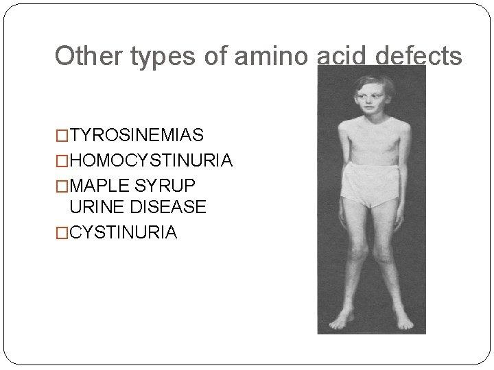 Other types of amino acid defects �TYROSINEMIAS �HOMOCYSTINURIA �MAPLE SYRUP URINE DISEASE �CYSTINURIA
