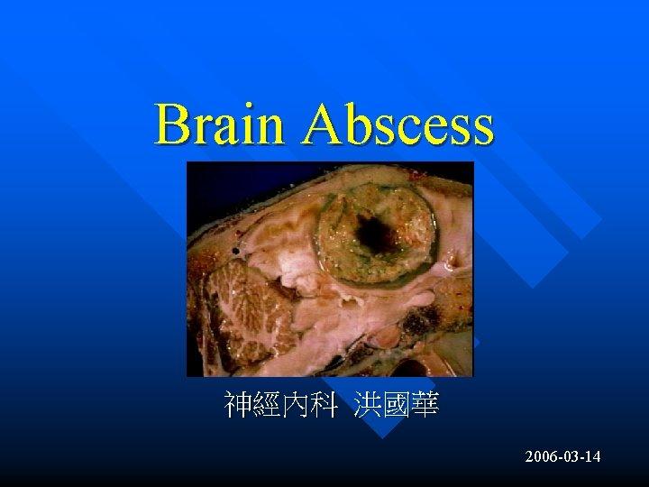 Brain Abscess 神經內科 洪國華 2006 -03 -14