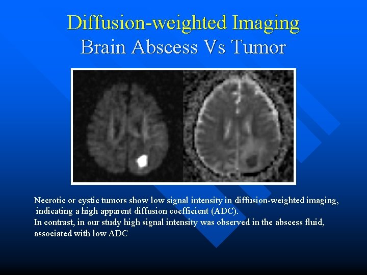 Diffusion-weighted Imaging Brain Abscess Vs Tumor Necrotic or cystic tumors show low signal intensity