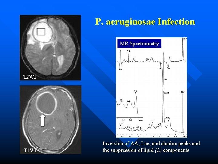 P. aeruginosae Infection MR Spectrometry T 2 WI T 1 WI C+ Inversion of