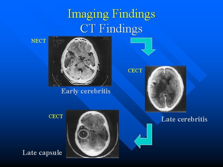 Imaging Findings CT Findings NECT CECT Early cerebritis CECT Late capsule Late cerebritis