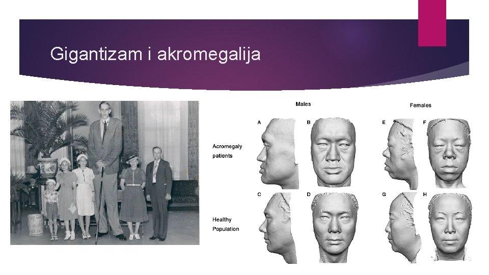 Gigantizam i akromegalija