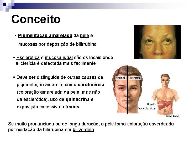 Conceito § Pigmentação amarelada da pele e mucosas por deposição de bilirrubina § Esclerótica