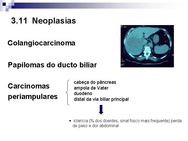 3. 11 Neoplasias Colangiocarcinoma Papilomas do ducto biliar Carcinomas periampulares cabeça do pâncreas ampola