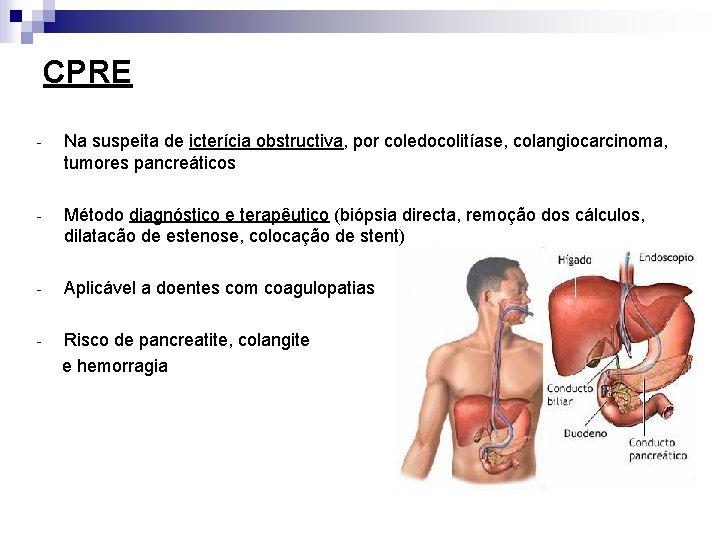 CPRE - Na suspeita de icterícia obstructiva, por coledocolitíase, colangiocarcinoma, tumores pancreáticos - Método