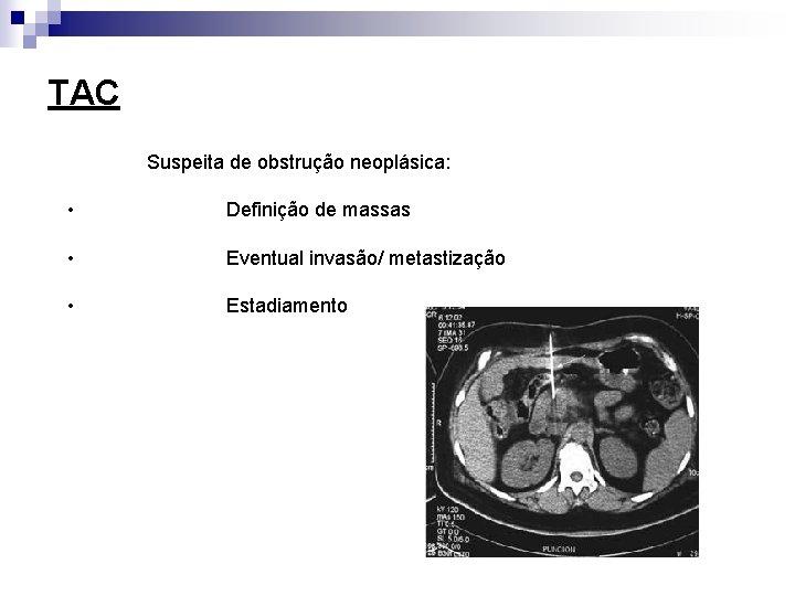 TAC Suspeita de obstrução neoplásica: • Definição de massas • Eventual invasão/ metastização •