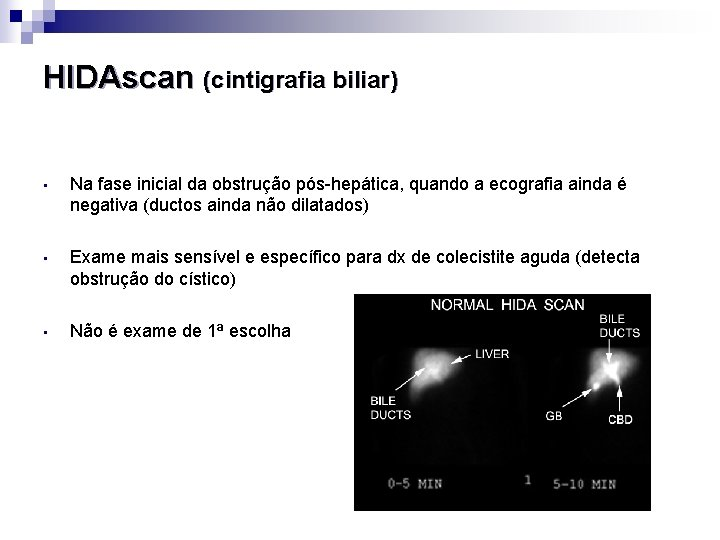 HIDAscan (cintigrafia biliar) • Na fase inicial da obstrução pós-hepática, quando a ecografia ainda