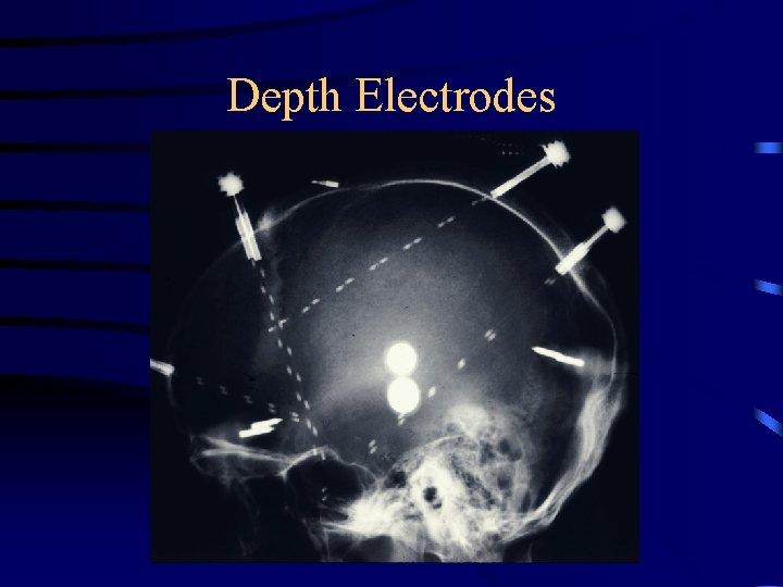 Depth Electrodes