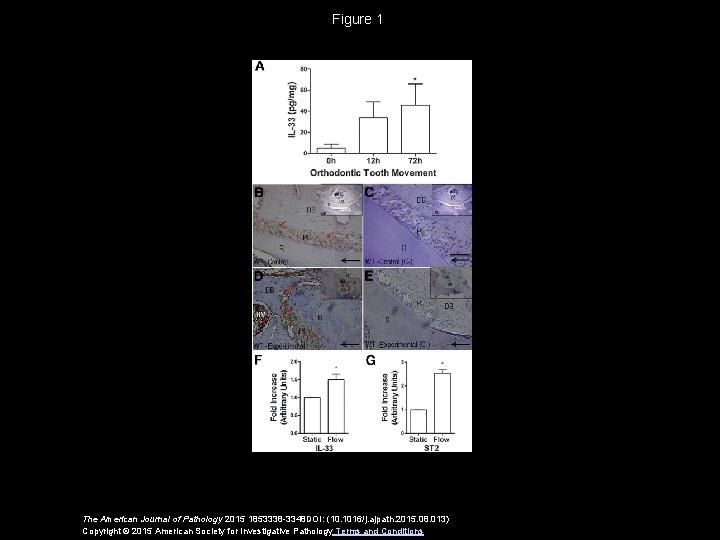 Figure 1 The American Journal of Pathology 2015 1853338 -3348 DOI: (10. 1016/j. ajpath.