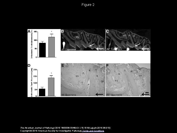 Figure 2 The American Journal of Pathology 2015 1853338 -3348 DOI: (10. 1016/j. ajpath.