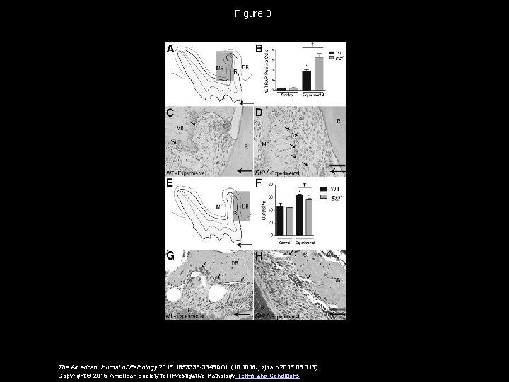 Figure 3 The American Journal of Pathology 2015 1853338 -3348 DOI: (10. 1016/j. ajpath.