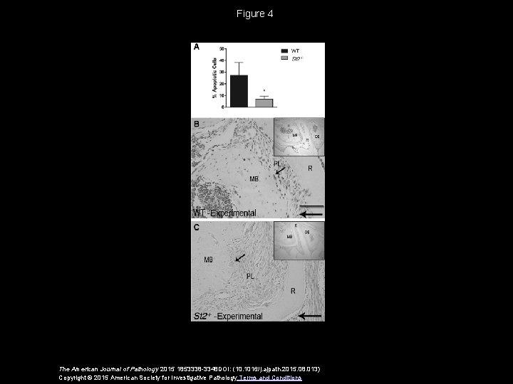 Figure 4 The American Journal of Pathology 2015 1853338 -3348 DOI: (10. 1016/j. ajpath.