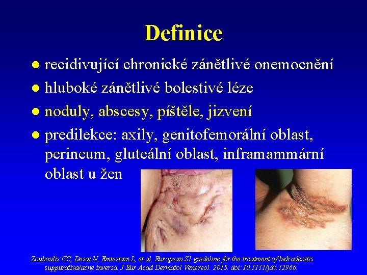 Definice recidivující chronické zánětlivé onemocnění l hluboké zánětlivé bolestivé léze l noduly, abscesy, píštěle,