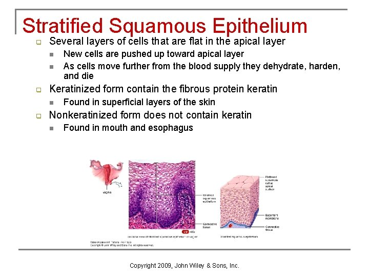 Stratified Squamous Epithelium q Several layers of cells that are flat in the apical