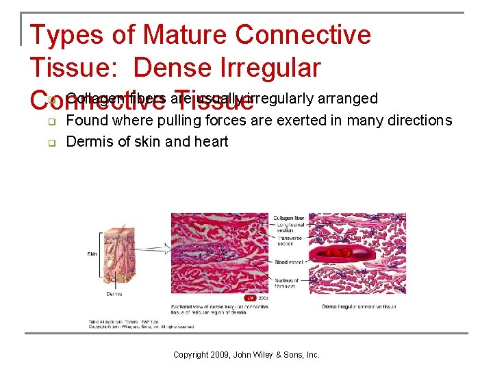 Types of Mature Connective Tissue: Dense Irregular Collagen fibers are usually irregularly arranged Connective