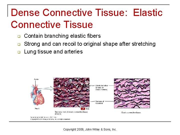 Dense Connective Tissue: Elastic Connective Tissue q q q Contain branching elastic fibers Strong