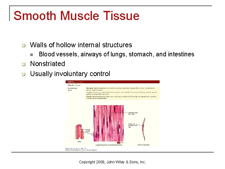 Smooth Muscle Tissue q Walls of hollow internal structures n q q Blood vessels,