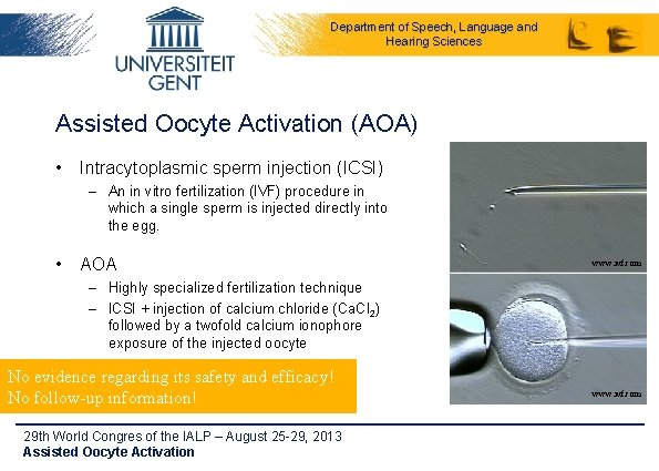 Department of Speech, Language and Hearing Sciences Assisted Oocyte Activation (AOA) • Intracytoplasmic sperm