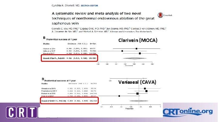Clarivein (MOCA) Venaseal (CAVA) JVS 2017