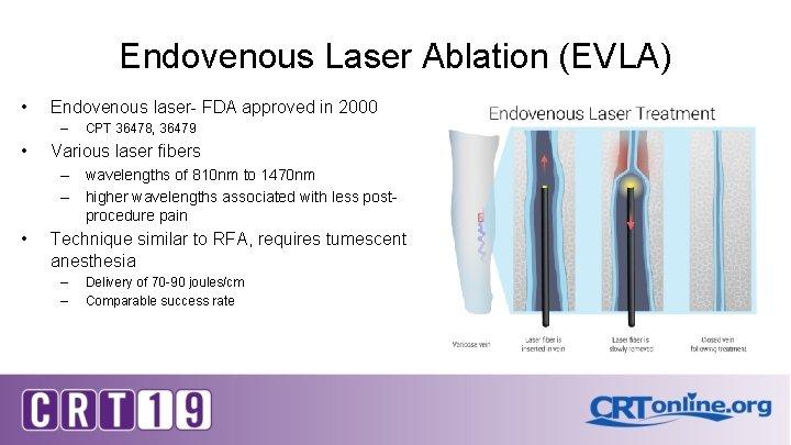 Endovenous Laser Ablation (EVLA) • Endovenous laser- FDA approved in 2000 – • CPT