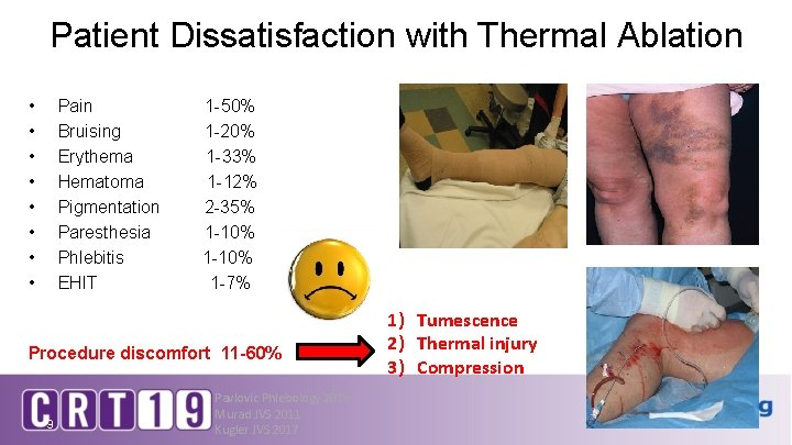 Patient Dissatisfaction with Thermal Ablation • • Pain Bruising Erythema Hematoma Pigmentation Paresthesia Phlebitis