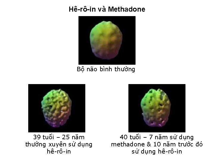 Hê-rô-in và Methadone Bộ não bình thường 39 tuổi – 25 năm 40 tuổi
