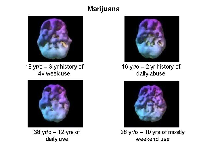 Marijuana 18 yr/o – 3 yr history of 4 x week use 38 yr/o