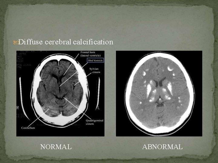 Diffuse cerebral calcification NORMAL ABNORMAL