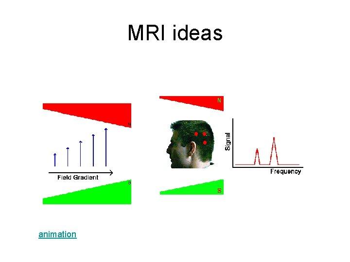 MRI ideas animation