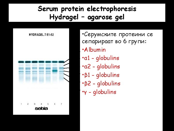 Serum protein electrophoresis Hydragel – agarose gel • Серумските протеини се сепарираат во 6
